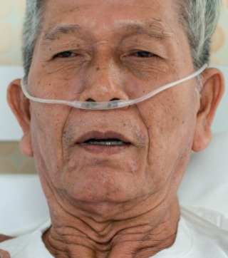 Respiratory Expertise, ILD